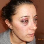 Пребиха и обраха жена пред дома й, побойниците бяха задържани